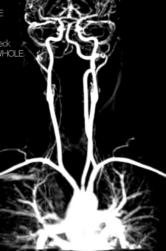 Vertebral Artery Dissection C5-Brainstem