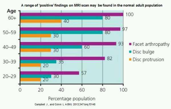 MRI of normal